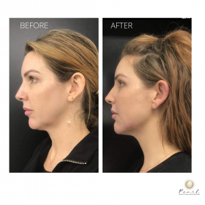 A non-surgical face lift using dermal fillers to jawline and chin