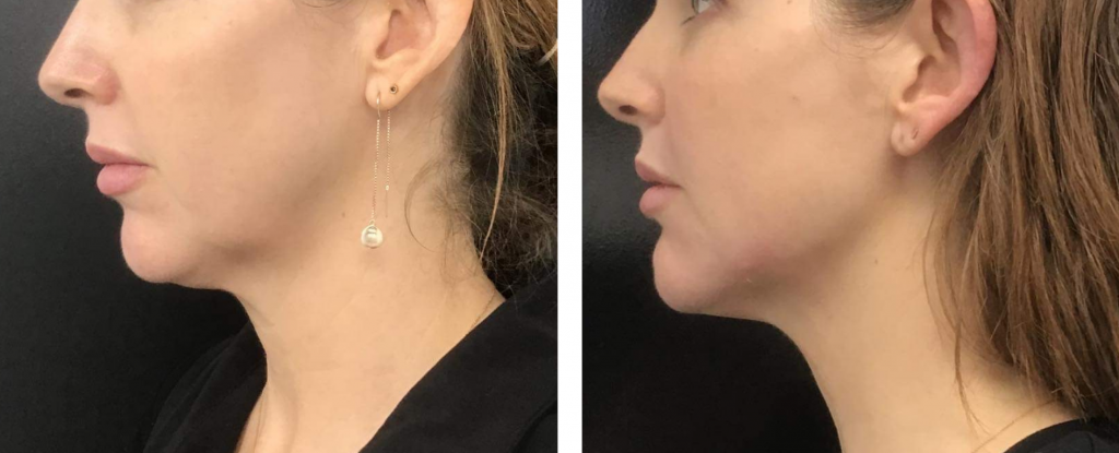Before and after image of a lady that has tried the non-surgical face lift