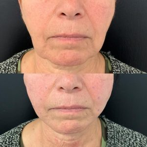Jowls & Marionette Lines: Non-surgical Jowl Lift for a