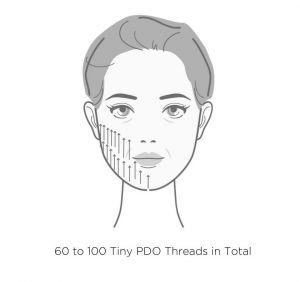 Diagram of PDO mono thread placement.
