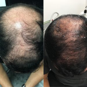 Prp For Hair Loss Prp Injection For Hair Loss Led Light Treatment