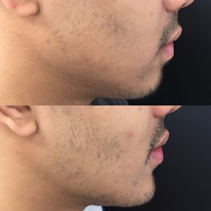 Male weak chin filler before and after photo