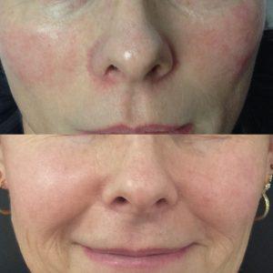 Acute facial reddening