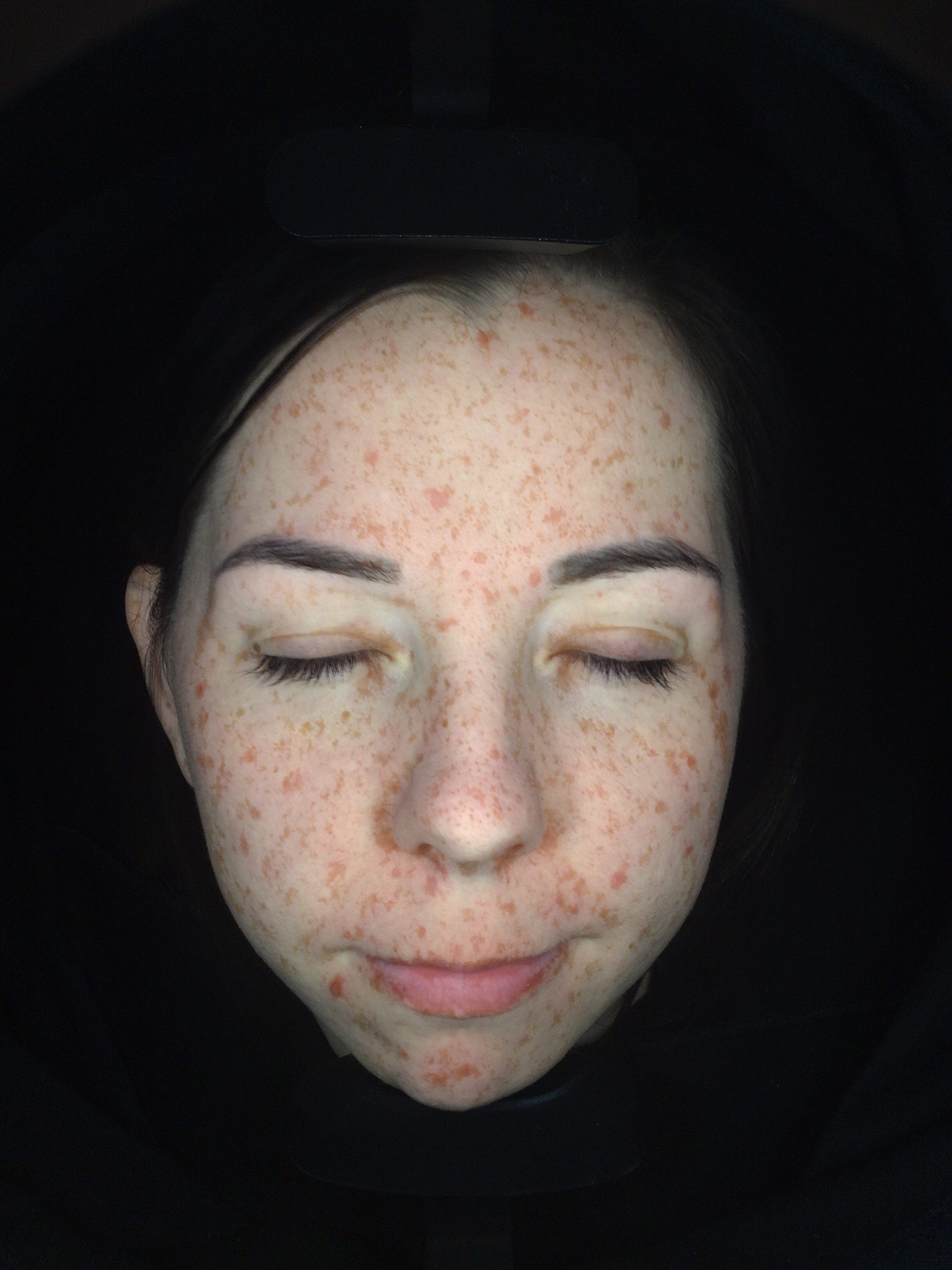 Skin Analysis | More Me skin scanner for a complete picture of your skin.