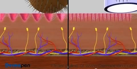 skin needling with  roller vs dermpen