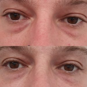 Fillers For Dark Circles Under Eyes Before And After