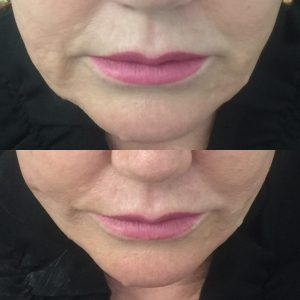 Before and after thread lift for lower face.