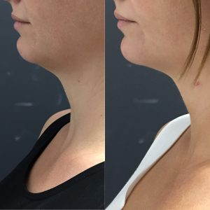 Before and after thread lift for neck and lower jaw.