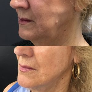 Thread Lift Brisbane | Aptos, PDO & MINT Thread Facelift and Neck Lift